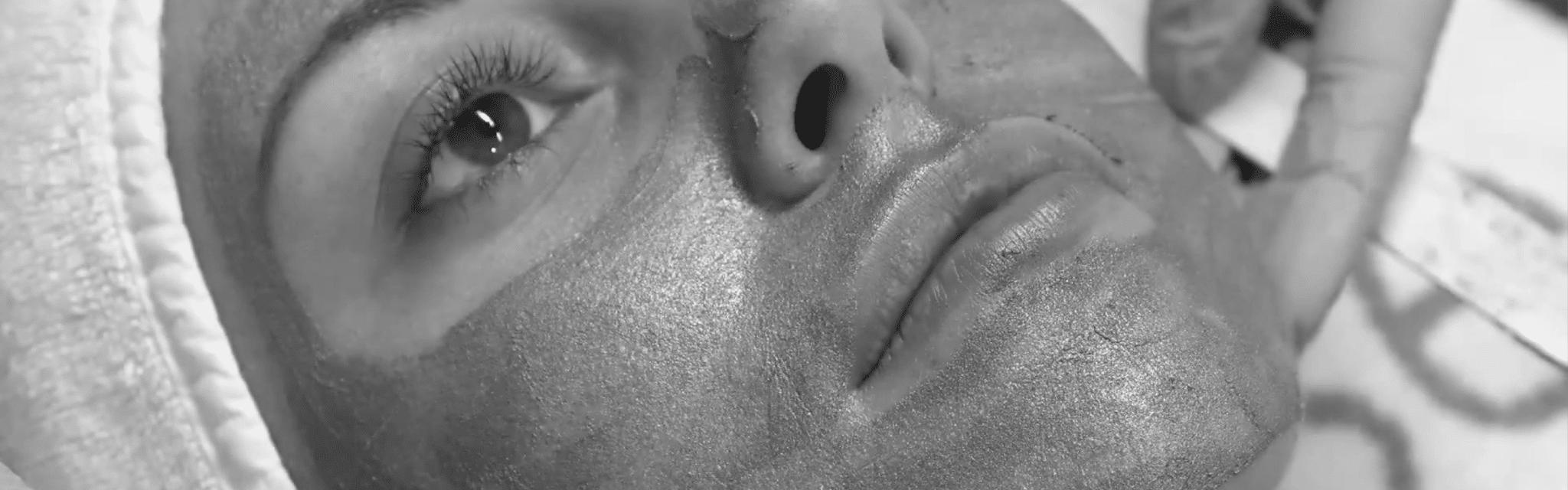 Kjemisk Peeling