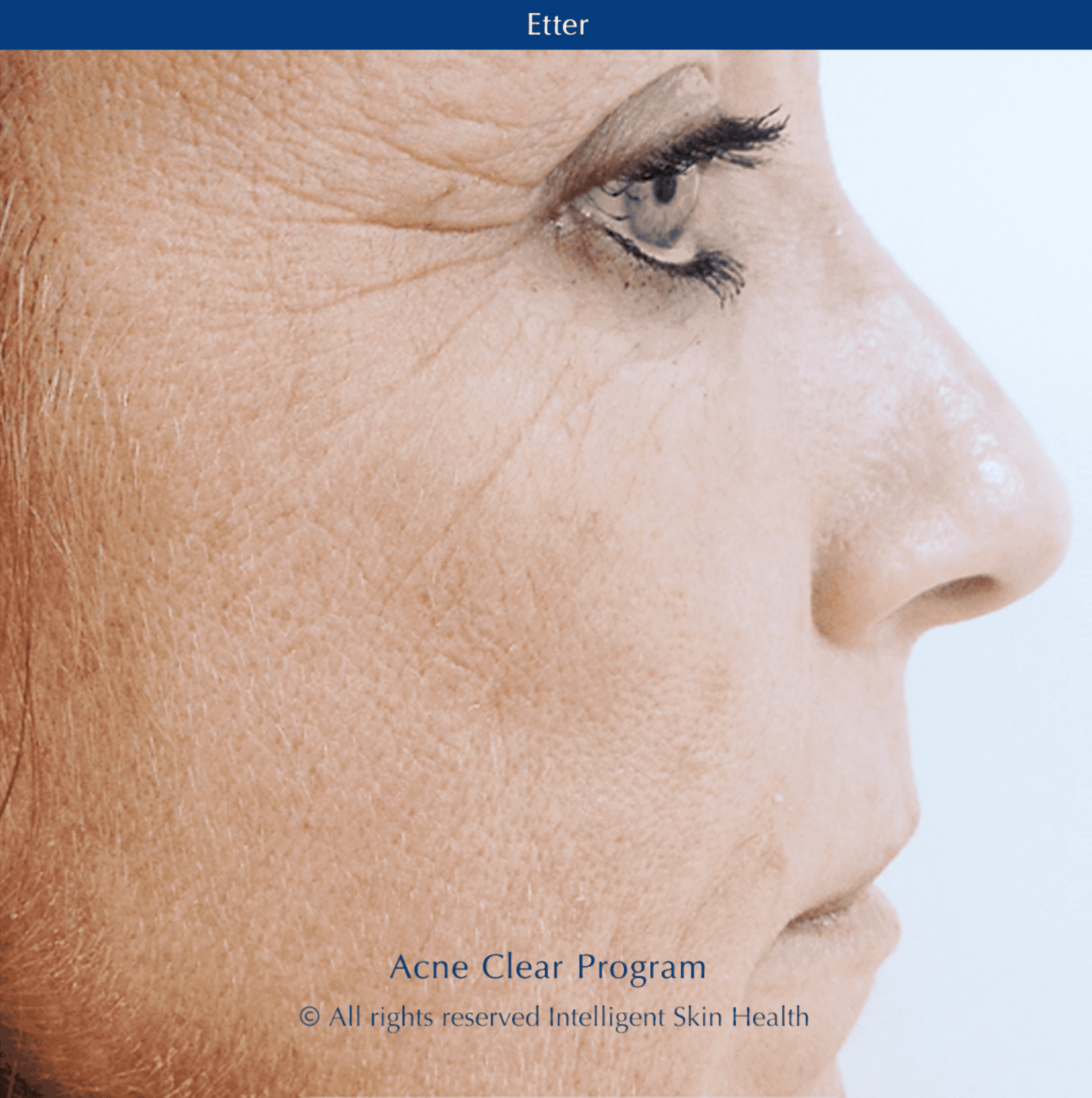 Intelligent Skin Health - Acne Clear Program After picture
