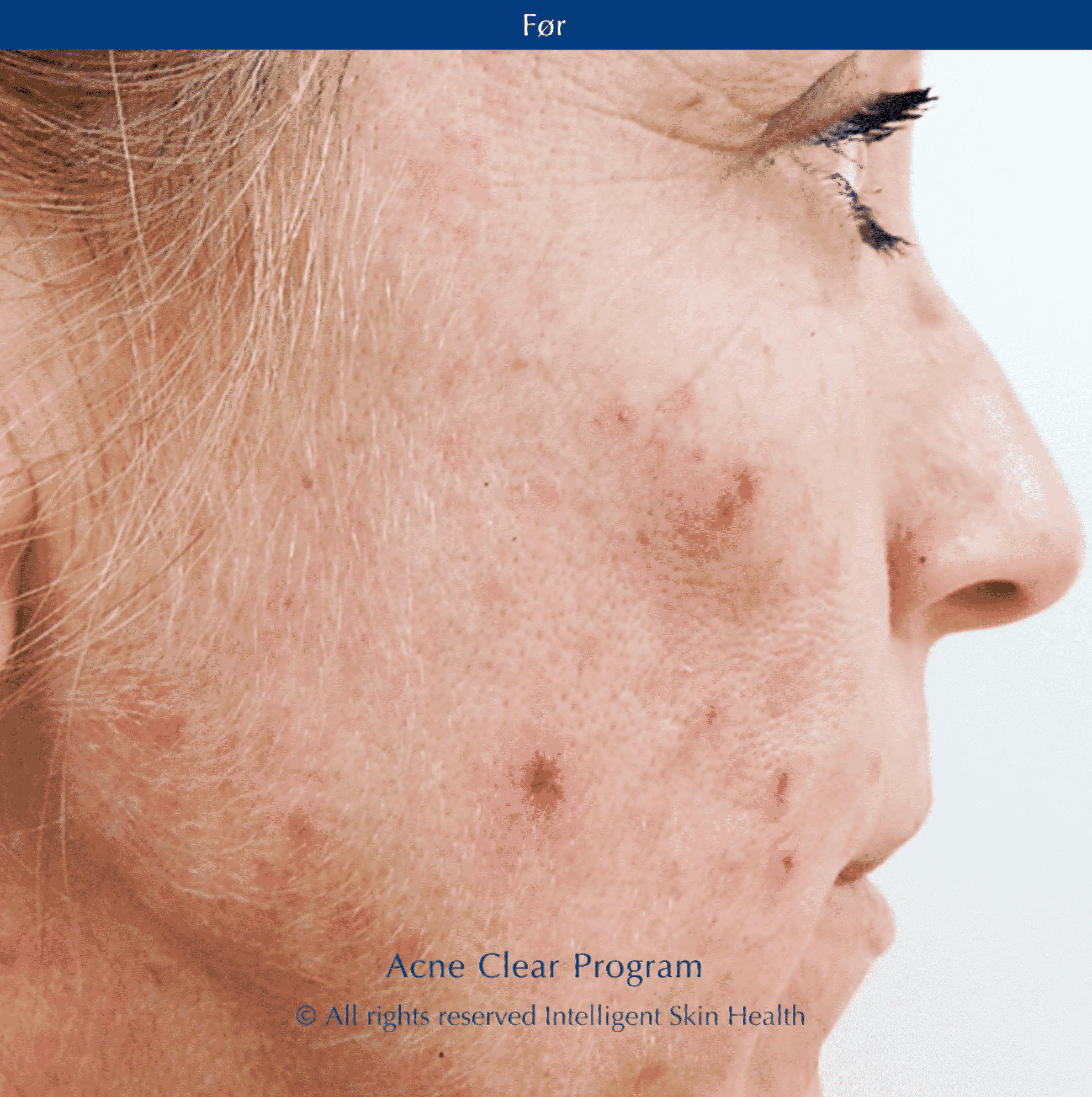 Intelligent Skin Health - Acne Clear Program Before picture