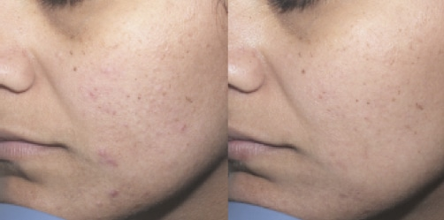 acne Clear Treat picture