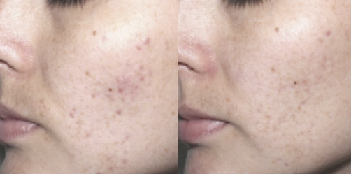acne Clear Treat picture3