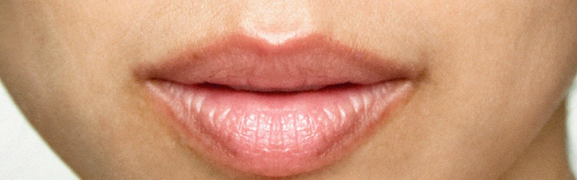 After Bilde Lip lase
