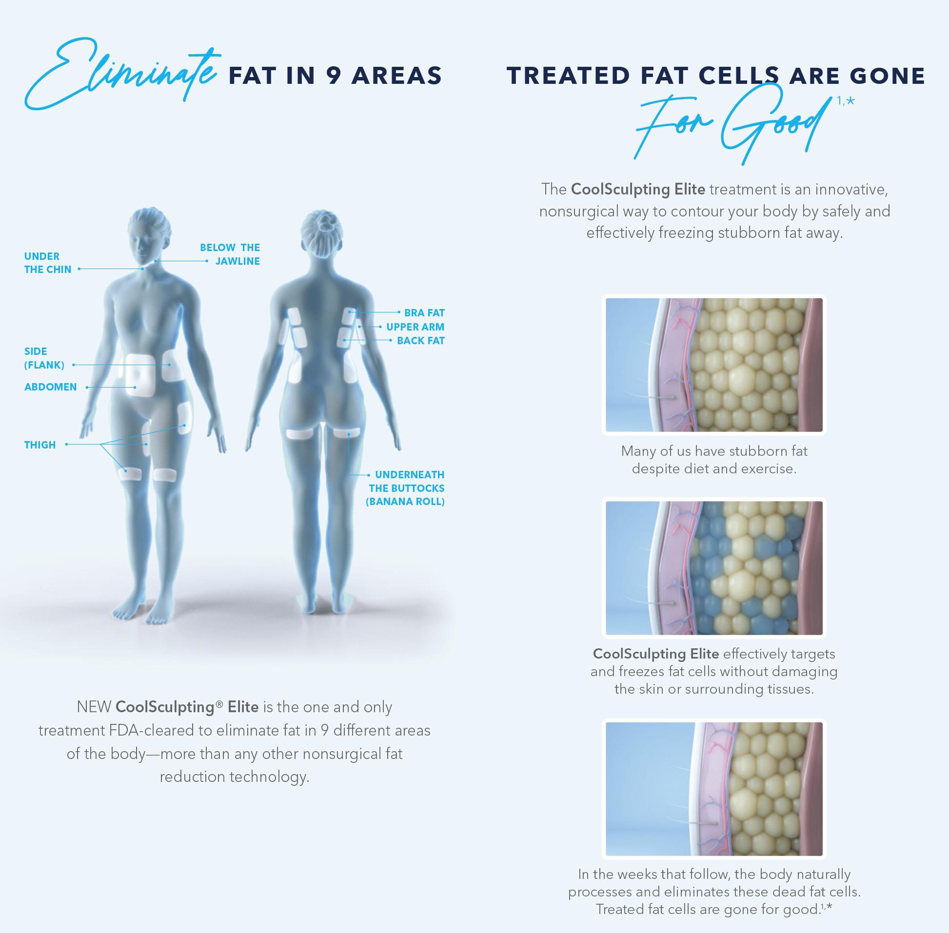 CoolSculpting elite eliminate fat cells