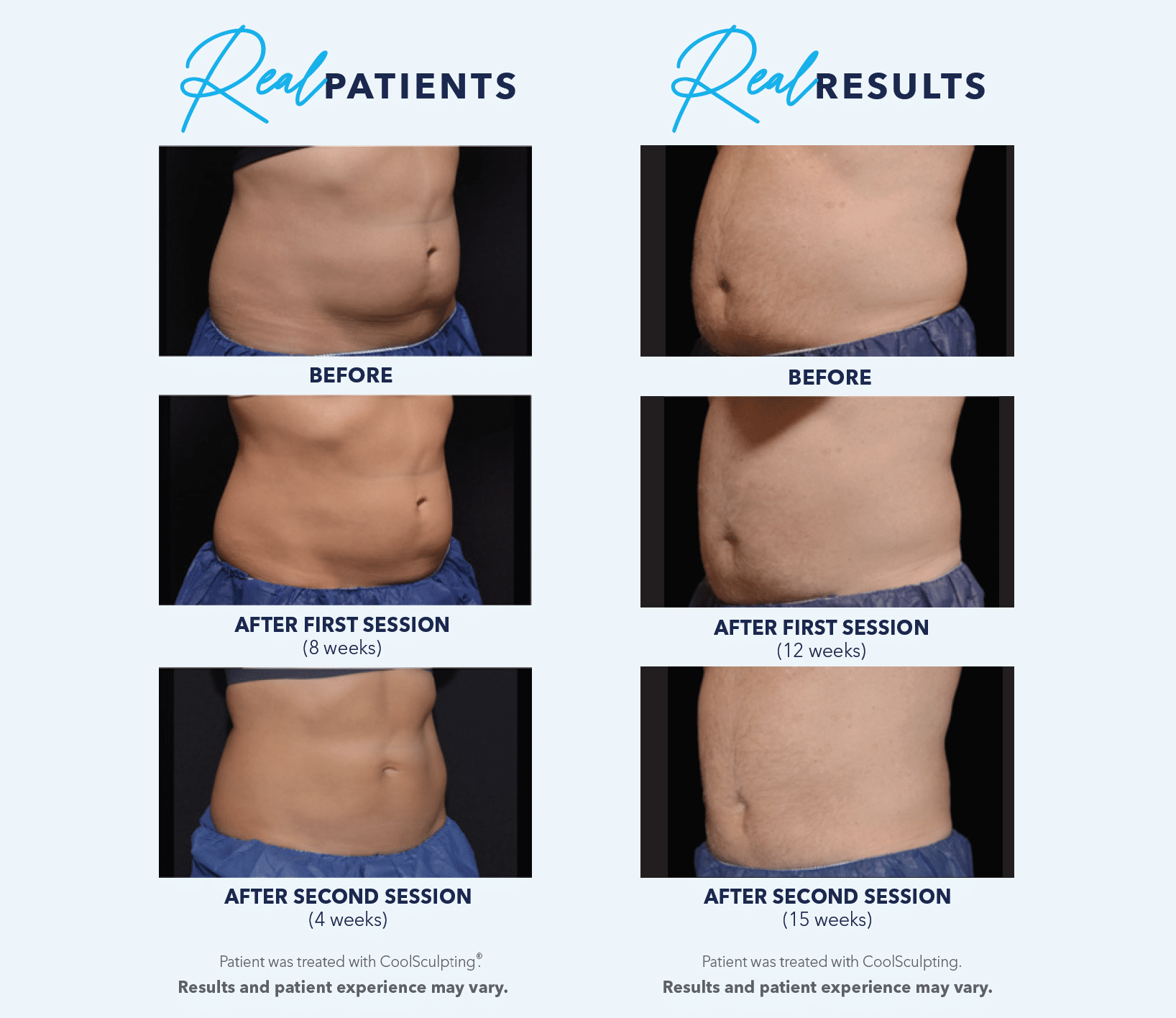 coolsculpting elite real patients real results
