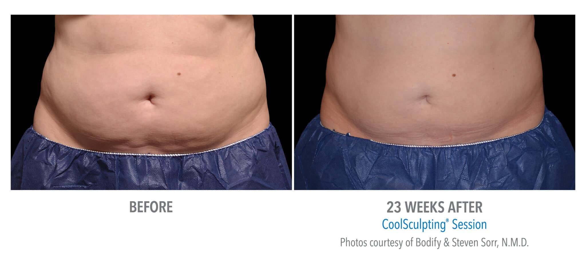 Female Abs før-etter 23 uke