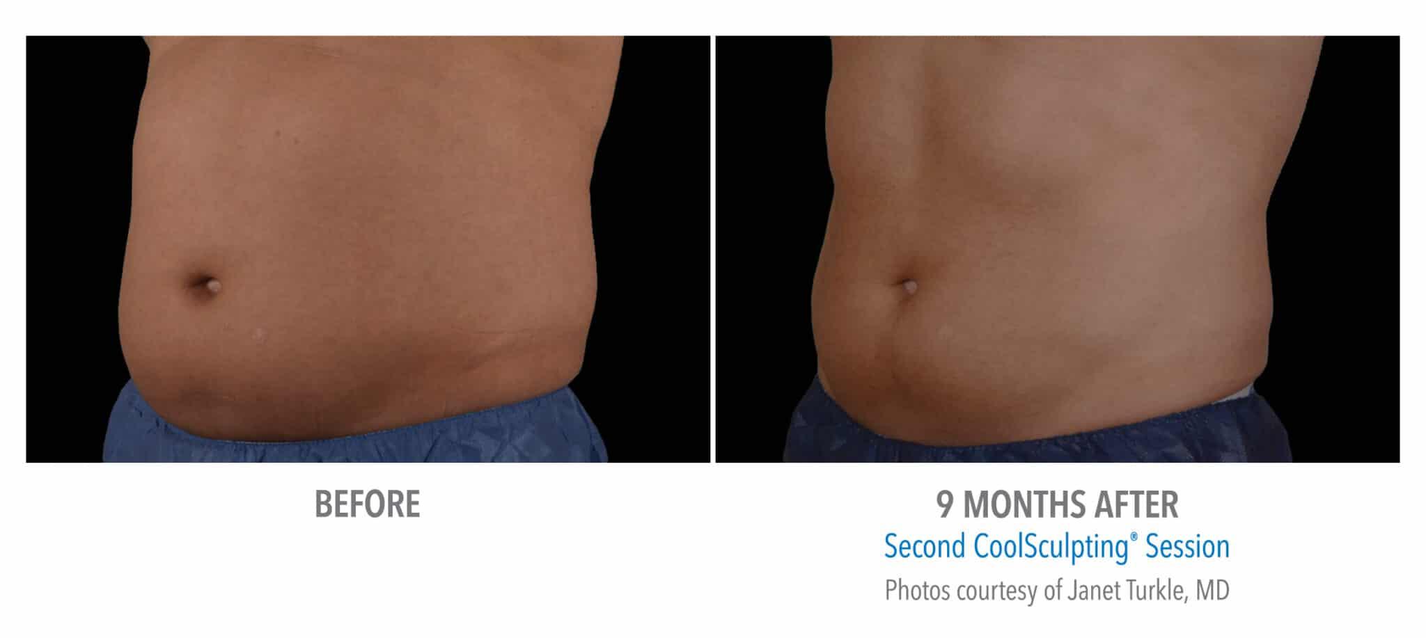 Mann Abs før-etter 9 måned