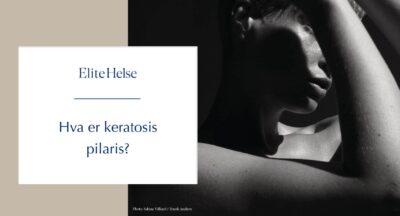 Har du små røde nupper og tørr hud? Slik blir du kvitt keratosis pilaris i sommer.